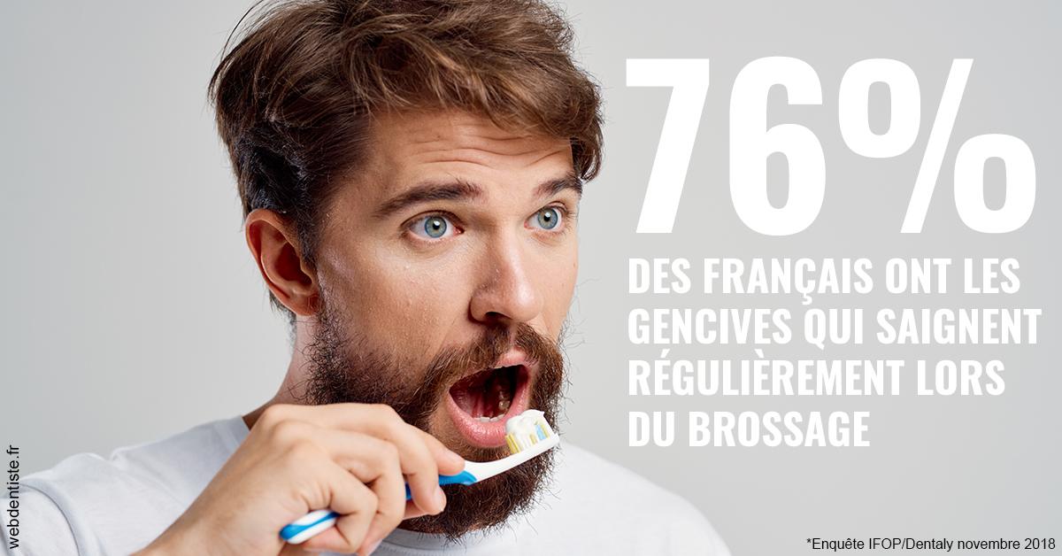 https://dr-estrabol-nicolas.chirurgiens-dentistes.fr/76% des Français 2